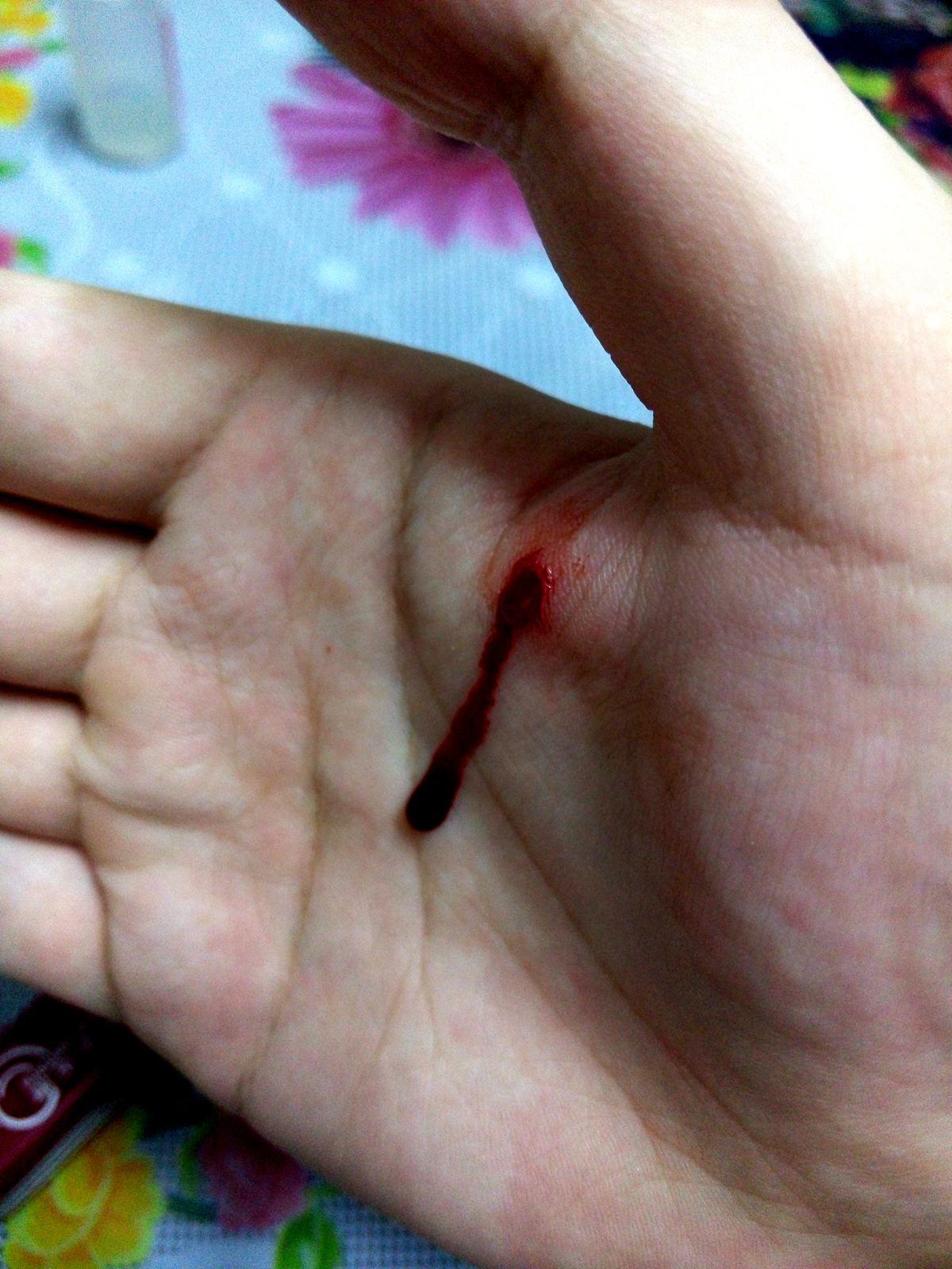 太凶残!我亲手从自己身上撕下了块肉